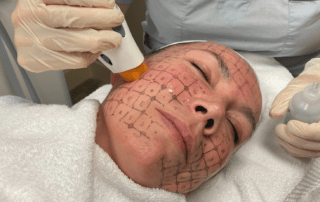 Woman with grid on face getting Thermage treatment.